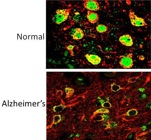 REST in healthy and Alzheimer's cells